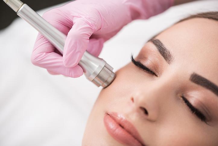 Microdermabrasion im Gesicht